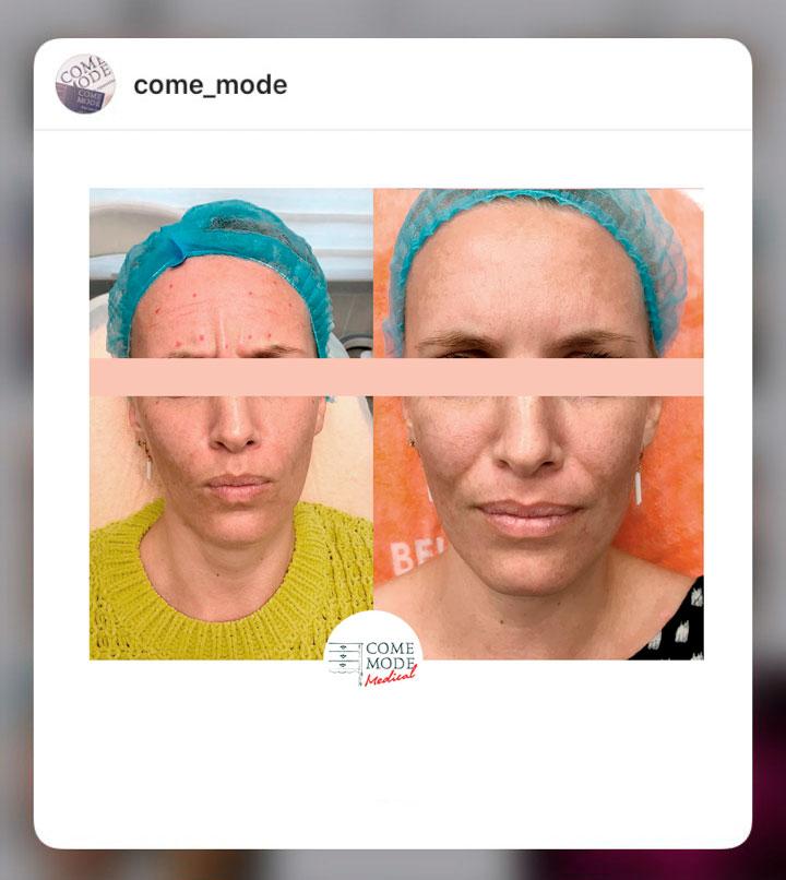 как продвигать косметолога в инстаграм
