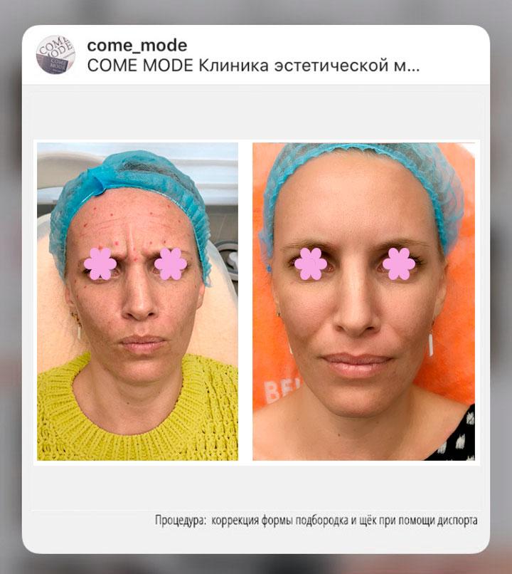 косметология инстаграм продвижение